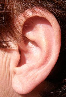 Photo of ear